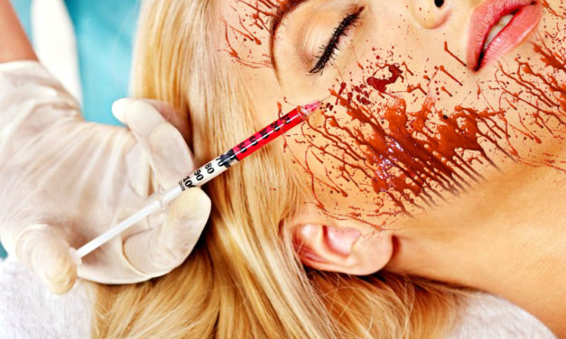 'Vampire Facial' May Have Exposed Spa Clients to HIV